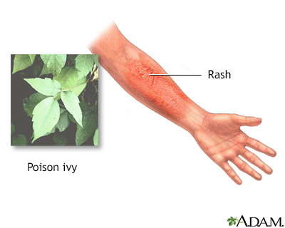 How long does poison ivy last