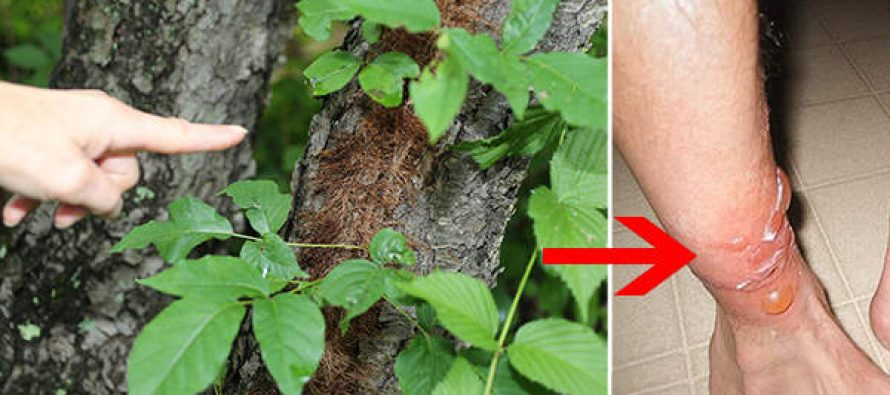 how to treat poison ivy